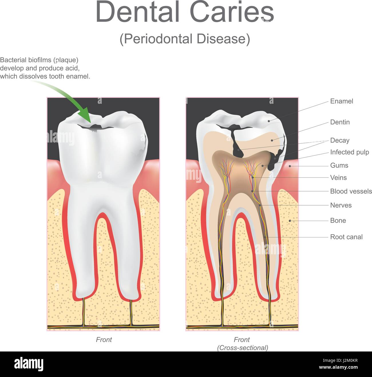 Dental caries is the scientific term for tooth decay or cavities. It ...
