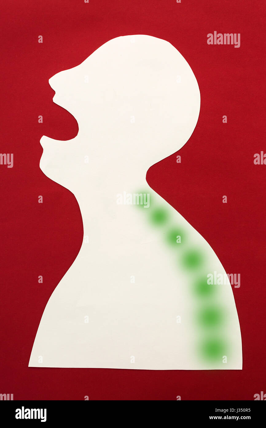 concept of human disease and pain localization on silhouette - abstract body, medical treatment of the spine, positive - Stock Image