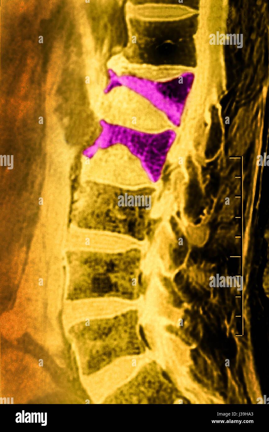 COMPRESSION FRACTURE, MRI Stock Photo