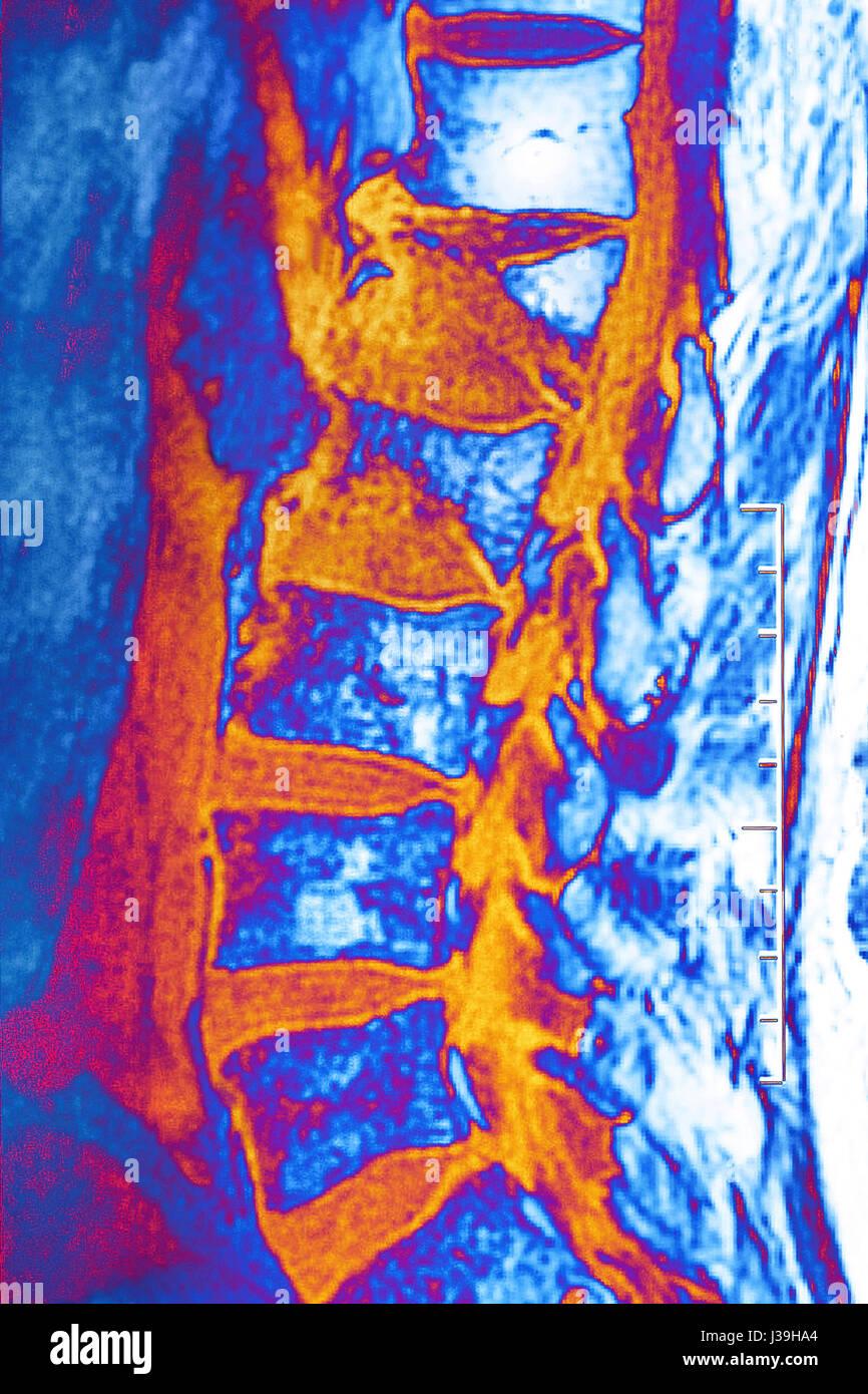 COMPRESSION FRACTURE, MRI - Stock Image