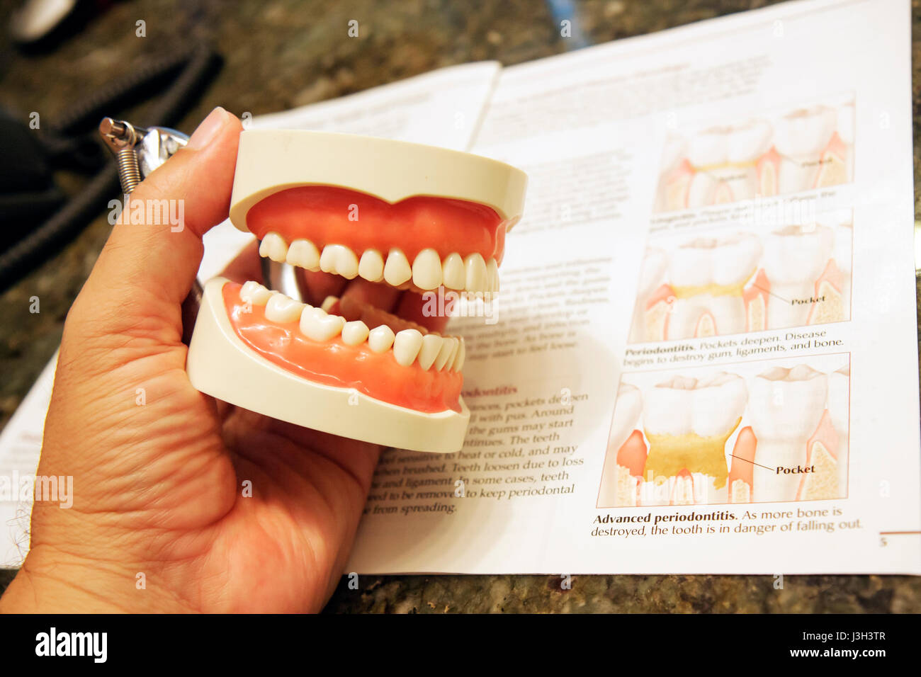 Miami Florida periodontist's office teeth dental care model gums molars health dentistry periodontitis illustrations - Stock Image