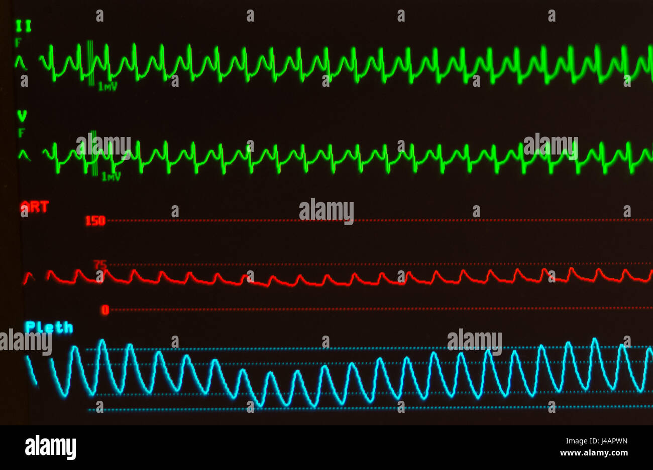 Black monitor with AVNRT/atrioventricular nodal reentrant tachycardia (green lines), arterial blood pressure (red) - Stock Image