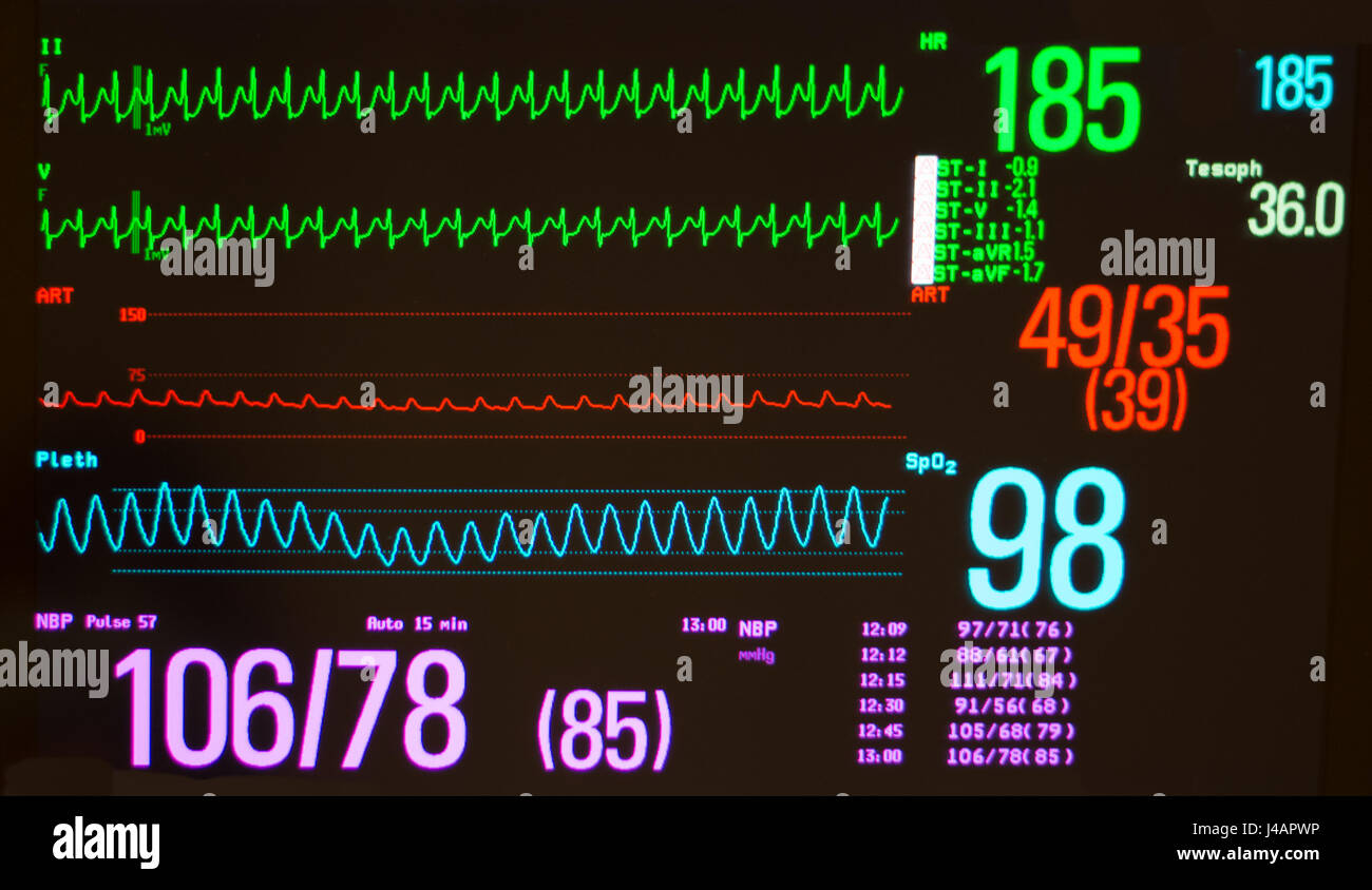 Black monitor with atrioventricular nodal reentrant tachycardia /AVNRT (green lines), arterial blood pressure (red) - Stock Image