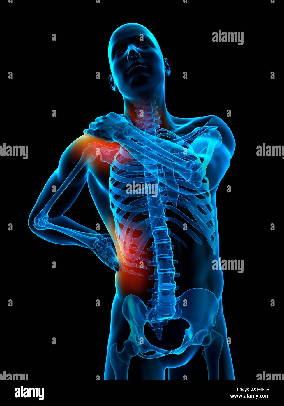 Skeletal Structure Of Human Shoulder And Waist Pain Illustration