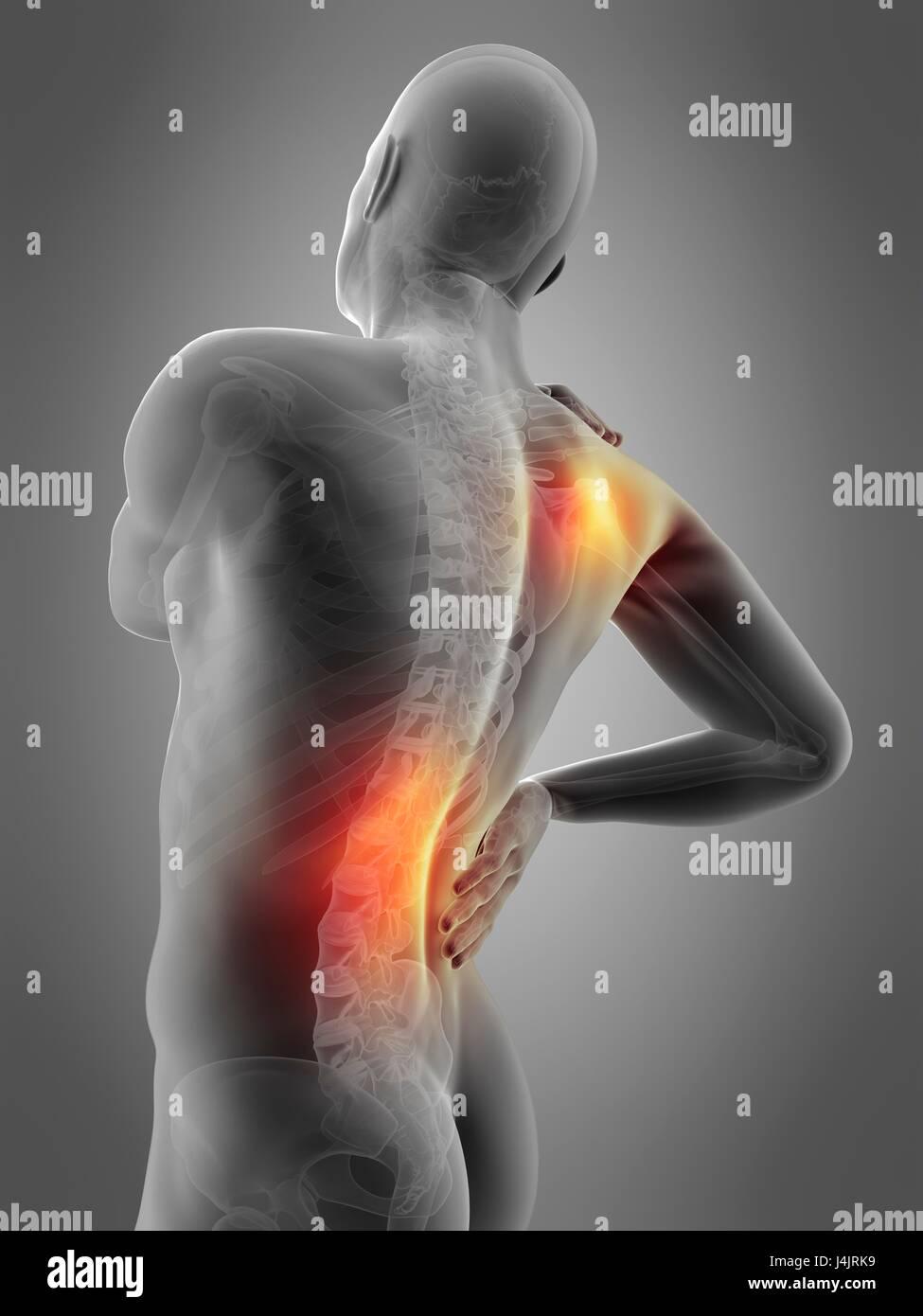 Skeletal Structure Of Human Shoulder And Waist Pain Illustration