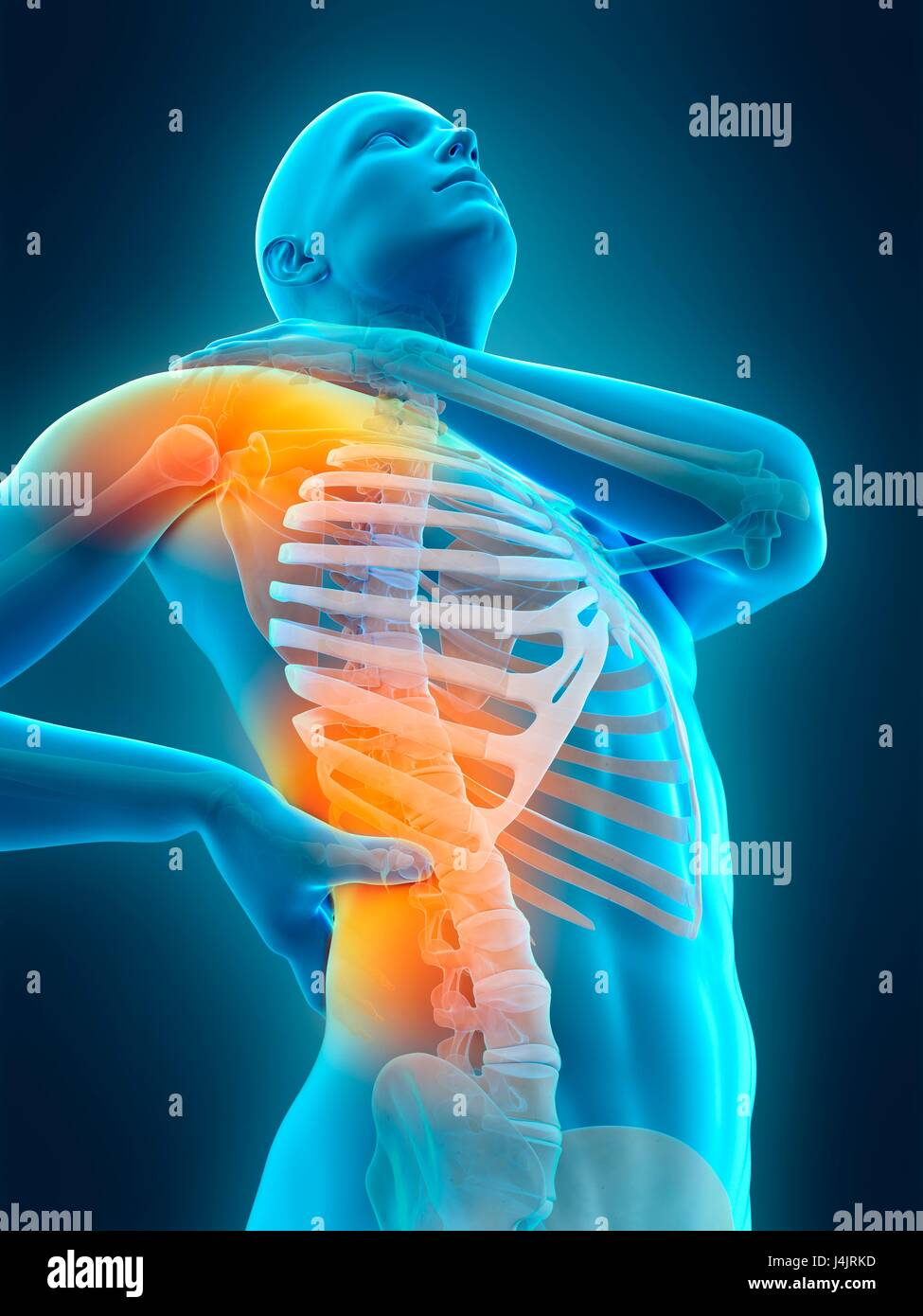 Skeletal structure of human shoulder and waist pain, illustration ...