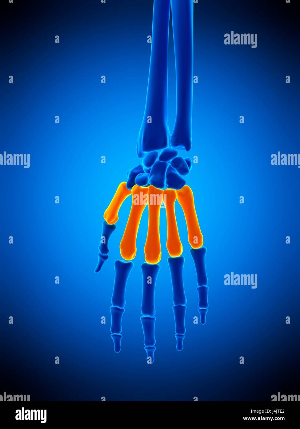 Illustration of the metacarpals bones. - Stock Image