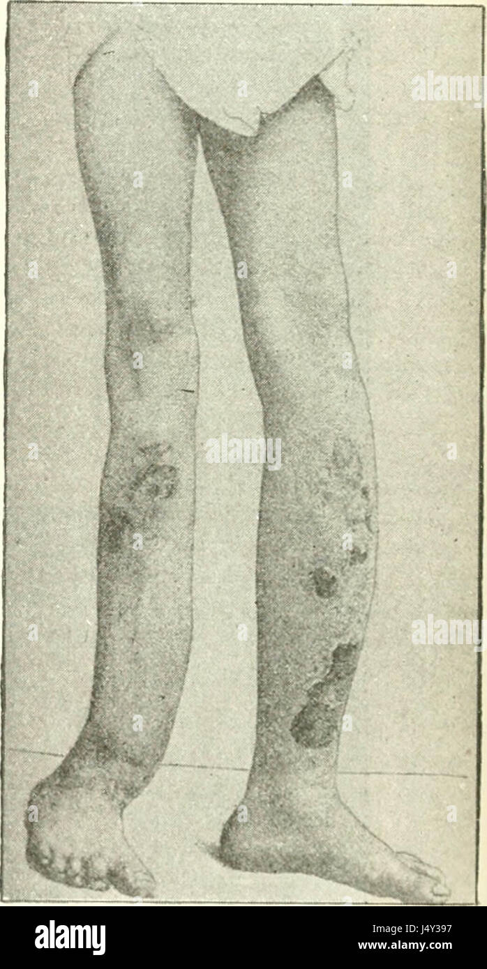 Hermaphroditismus Beim Menschen 1908 High Resolution Stock