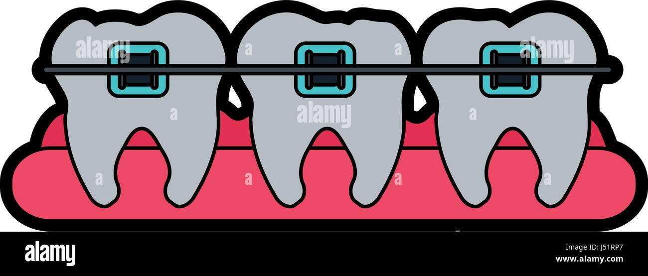 molars with braces dental care related icon image - Stock Image