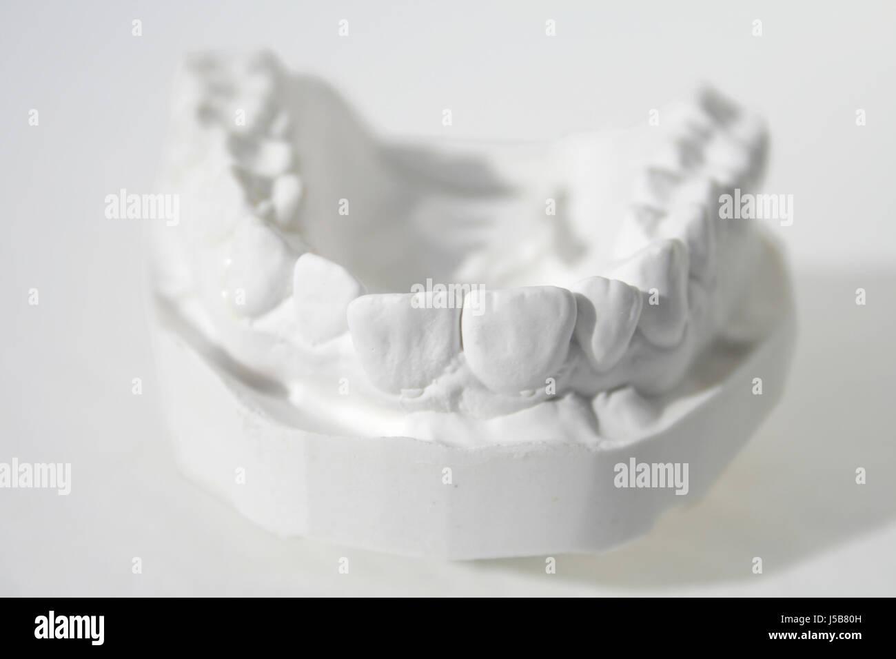 plaster model maxillary anterior view - Stock Image