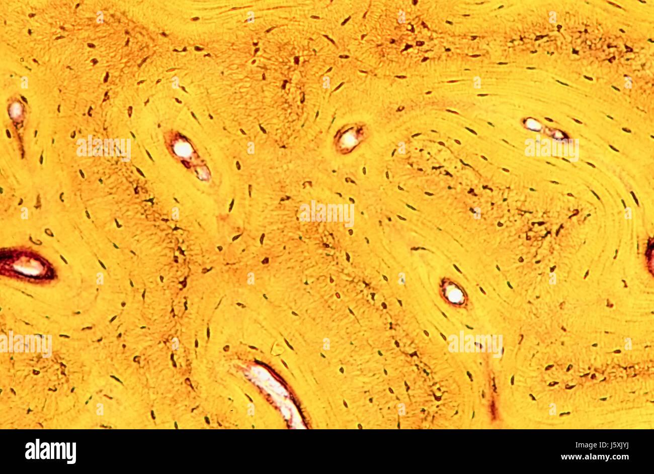 bone tissue of humans - Stock Image