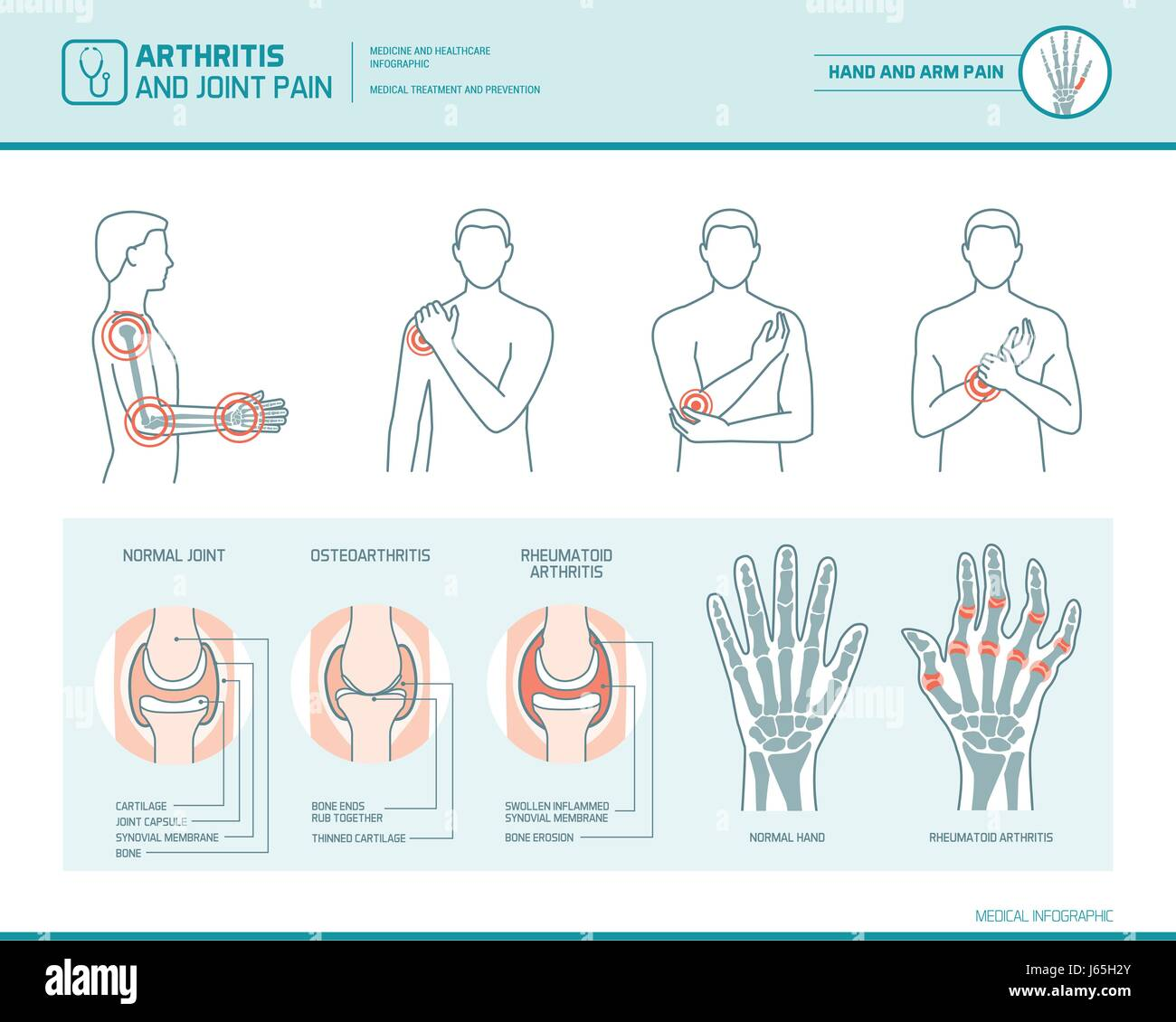 Arthritis and joint pain infographic, anatomic illustration of an inflammed hand and arm Stock Vector