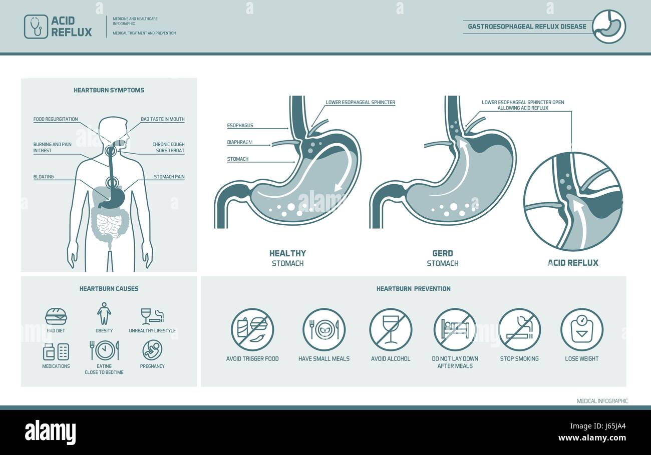 Acid Reflux Heartburn And Gerd Infographic With Stomach Medical Still Diagram Illustration Symptoms Causes Prevention