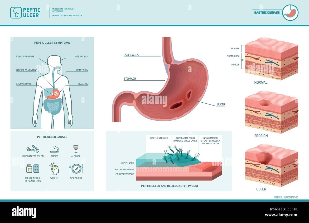 peptic ulcer and helicobacter pylori infographic with symptoms and causes,  stomach cross section diagram, medical illustration