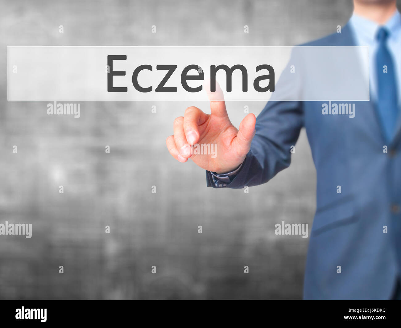 Vesicular Rash Stock Photos Images Alamy Human Skin As A Touch Screen Interface Eczema Businessman Hand Pressing Button On Business Technology Internet