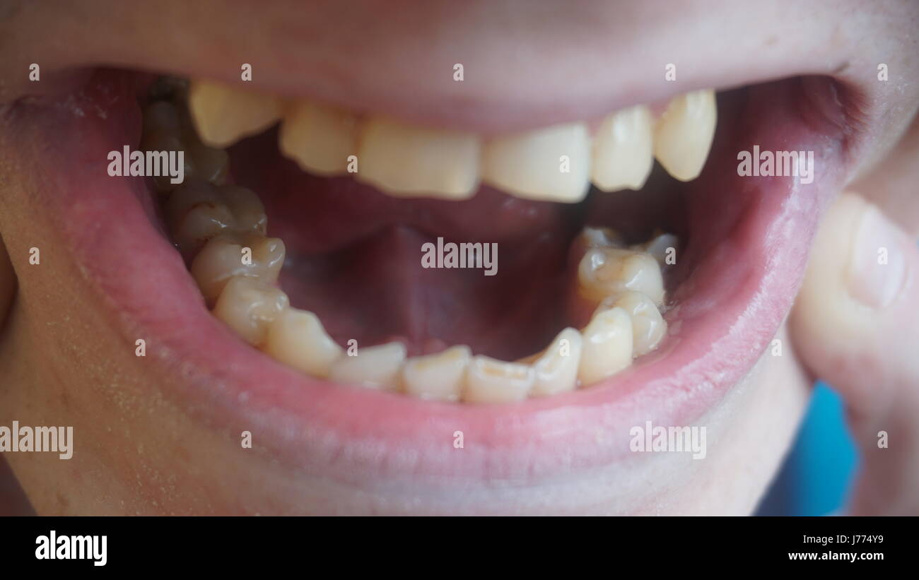 Social experiment shows bad teeth are a dating turn-off