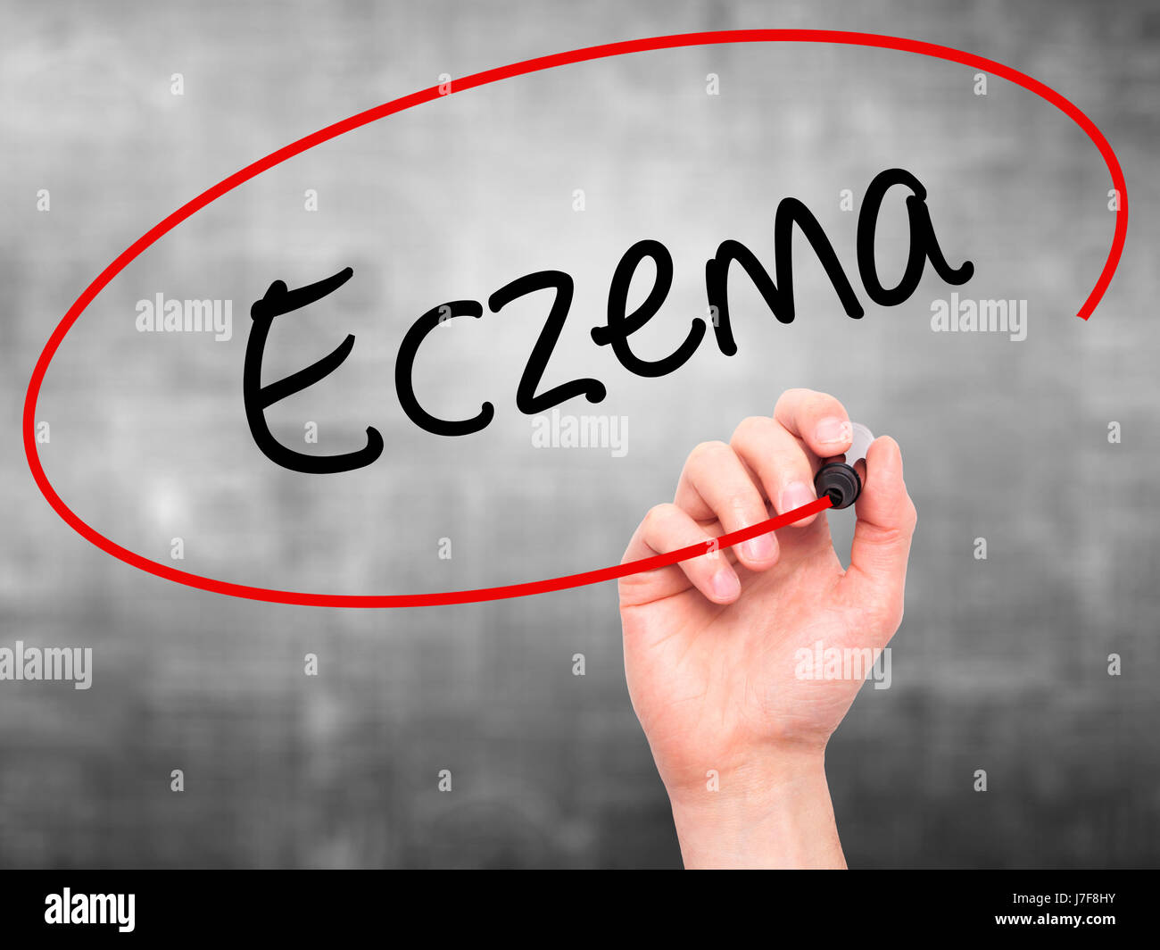 Man Hand writing Eczema with black marker on visual screen. Isolated on background. Business, technology, internet Stock Photo