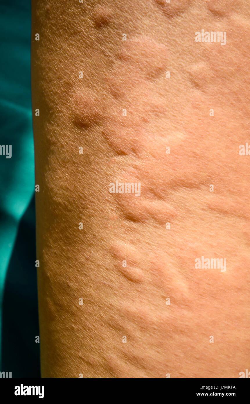 Skin Rash Stock Photos & Skin Rash Stock Images - Alamy