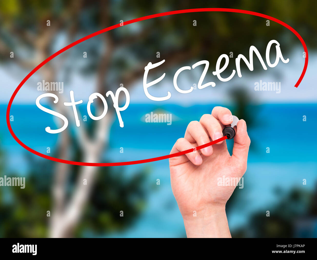 Man Hand writing Stop Eczema with black marker on visual screen. Isolated on nature. Business, technology, internet Stock Photo