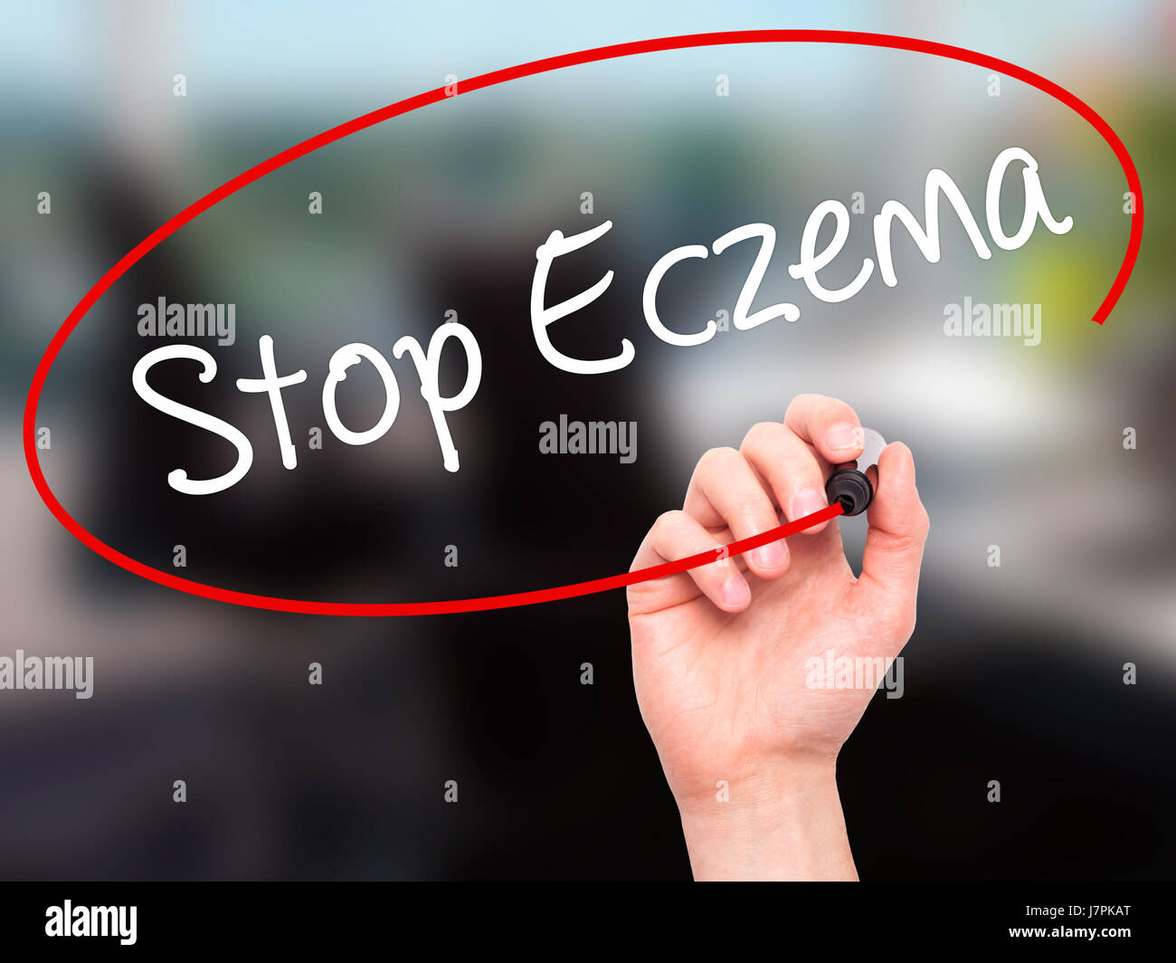 Man Hand writing Stop Eczema with black marker on visual screen. Isolated on office. Business, technology, internet Stock Photo