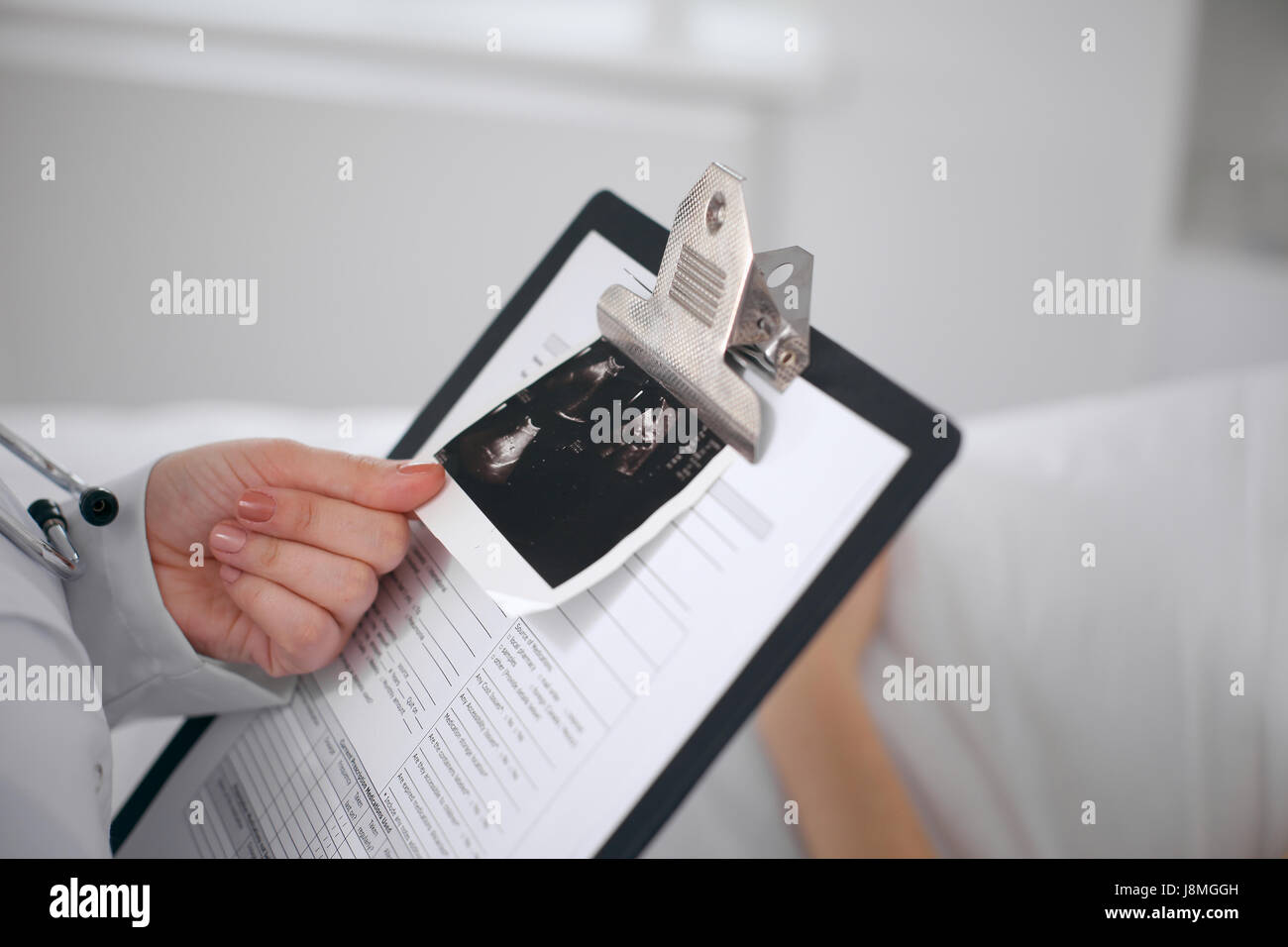Close-up of a female doctor holding application form with ultrasonography while consulting patient - Stock Image