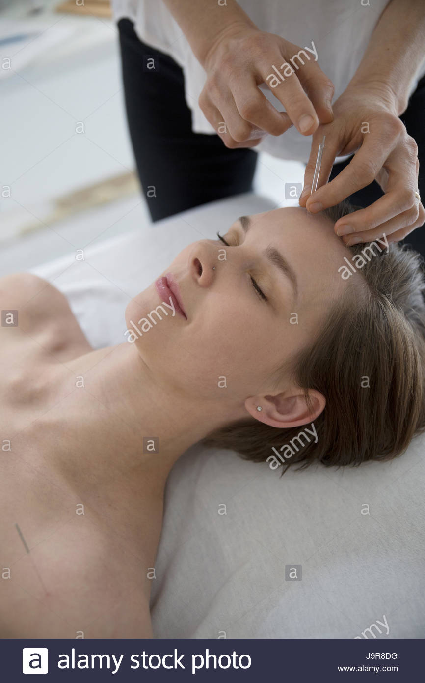 Acupuncturist applying needle to forehead of serene woman - Stock Image