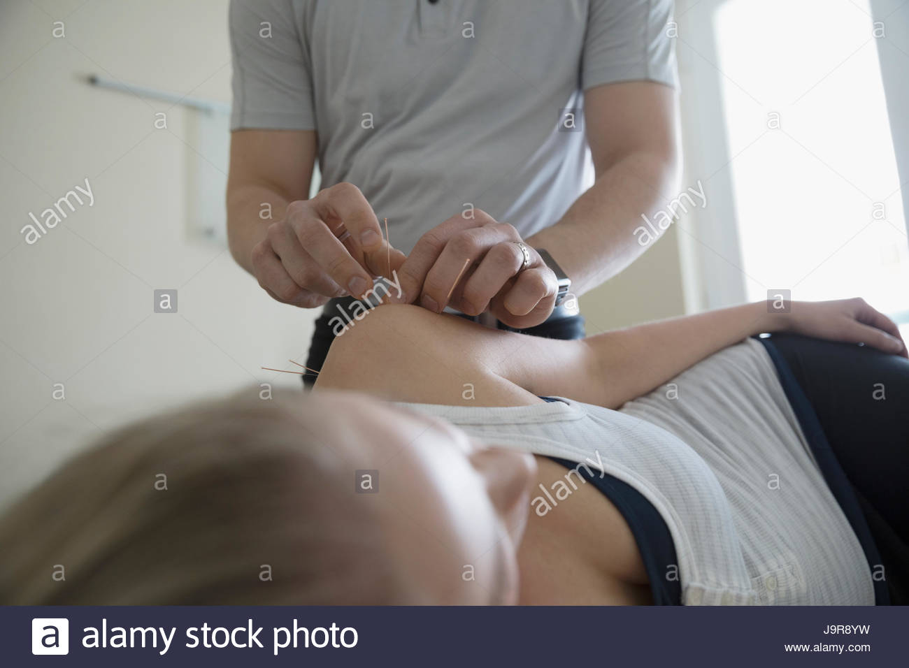 Male acupuncturist inserting needles in shoulder of woman in clinic examination room - Stock Image
