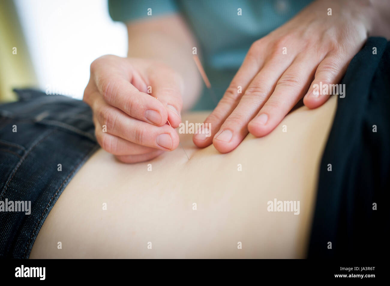 Acupuncture in progress at this healing centre. - Stock Image