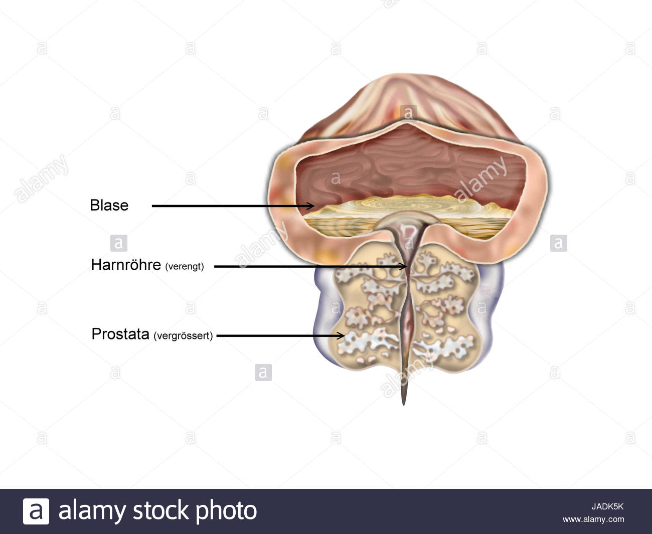 prostata vergrösserung Stock Photo: 144129935 - Alamy
