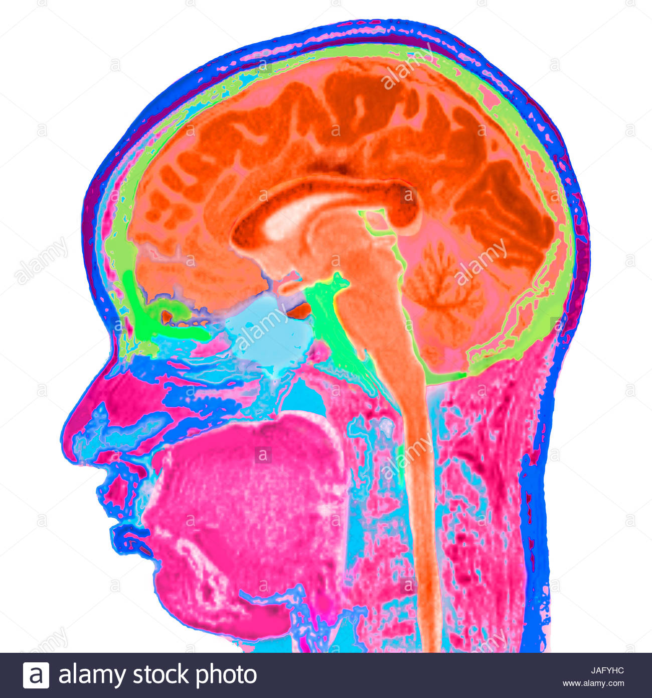 False-coloured sagittal view of an MRI scan of a human head and ...