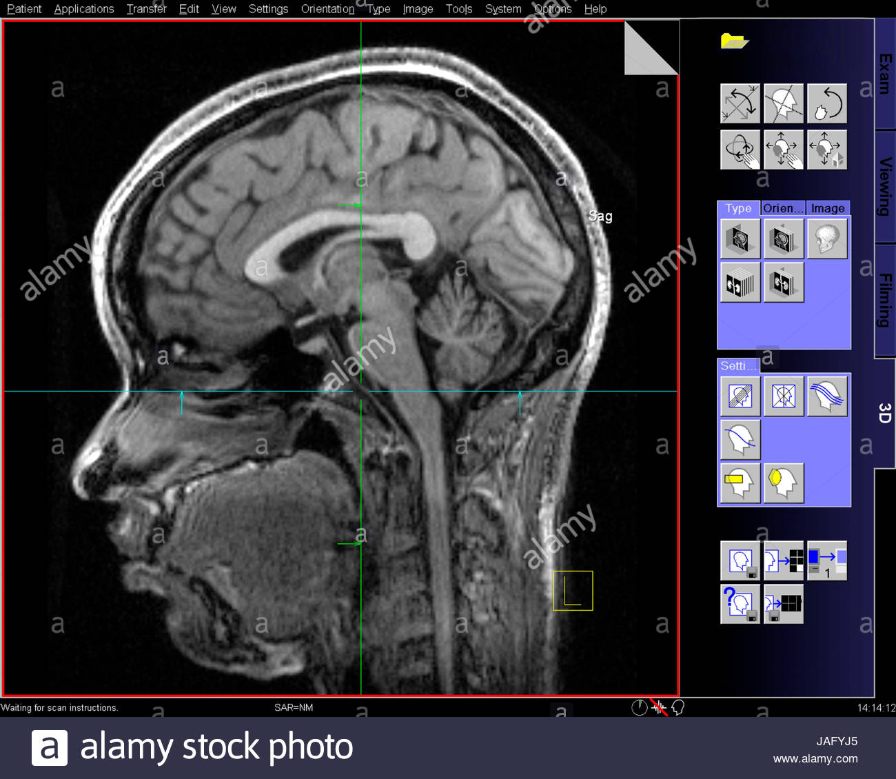 Sagittal view of \'slice\' of MRI scan of a human head and brain Stock ...