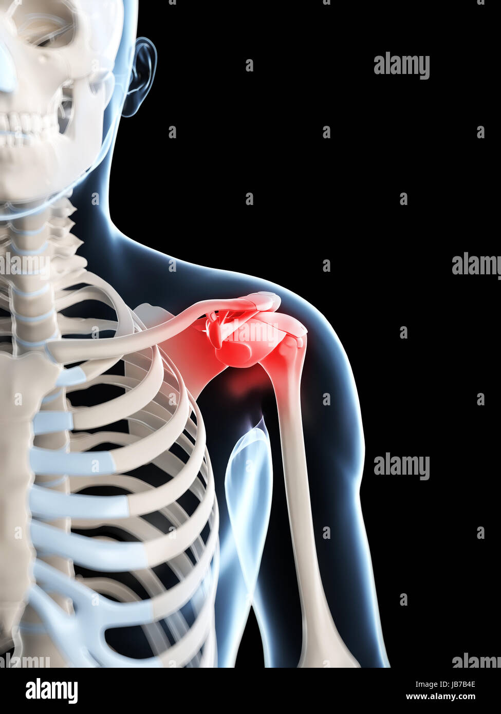 3d rendered illustration of a painful shoulder Stock Photo ...
