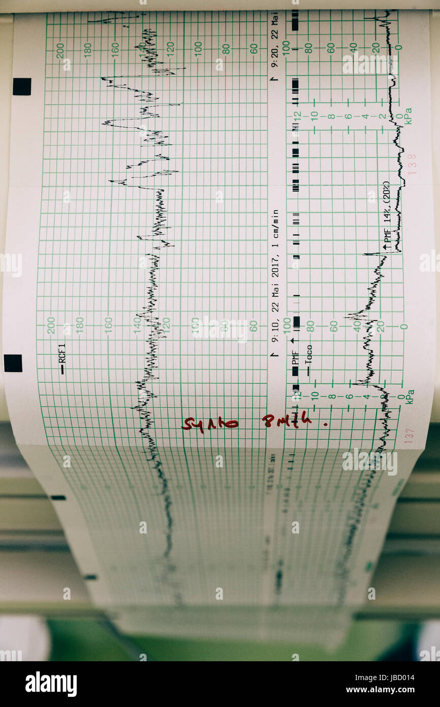 Printout coming out of a fetal monitoring device in a hospital. - Stock Image
