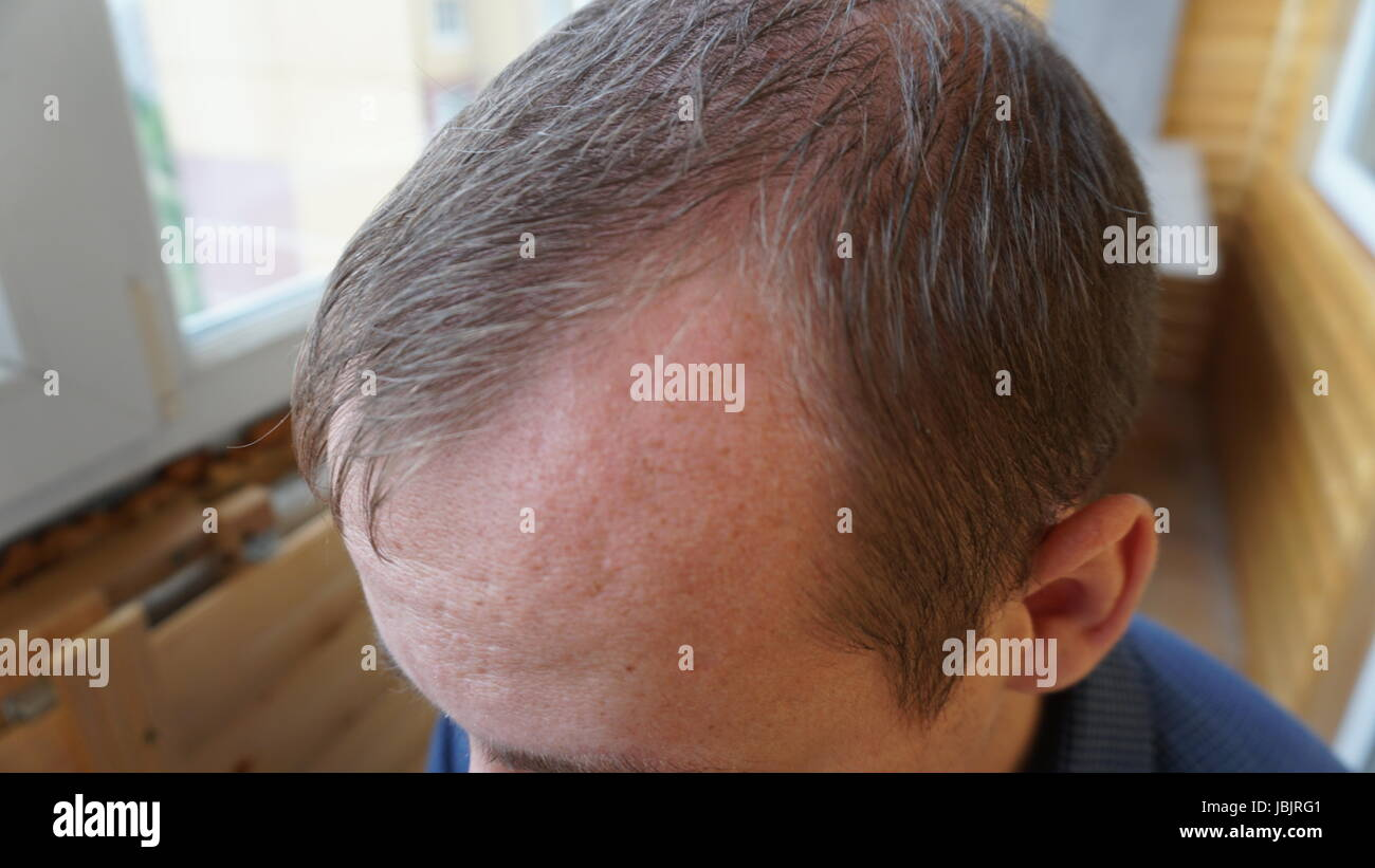male head with thinning hair or alopecia. Stock Photo