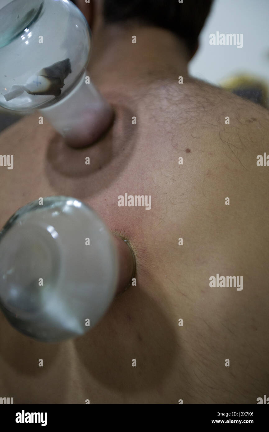 Details of a man getting cupping done with a therapist - Stock Image