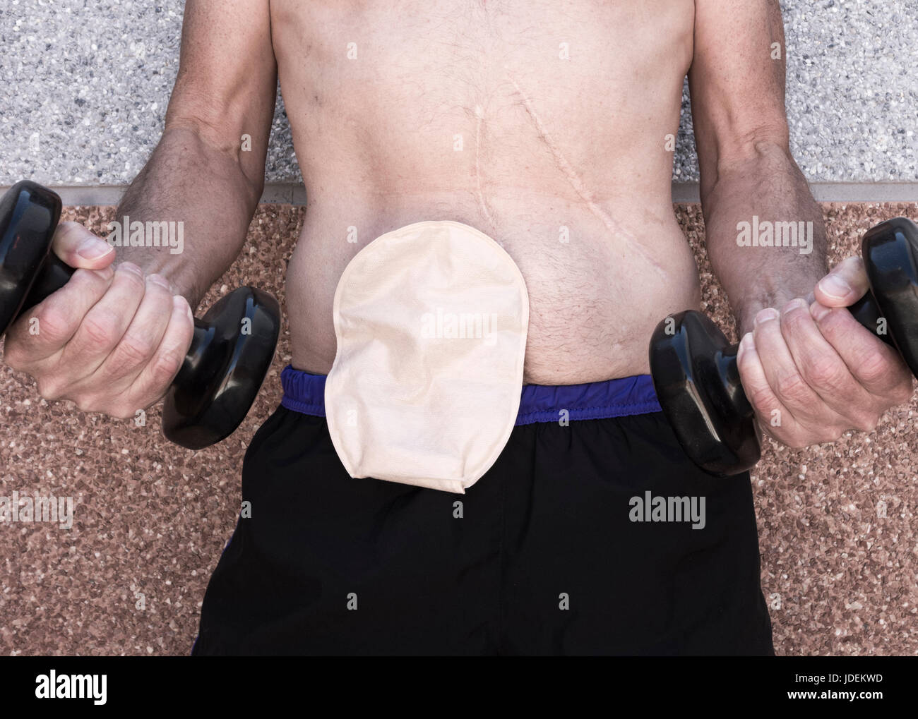 Healthy sixty year old man wearing ileostomy bag working out with weights. - Stock Image