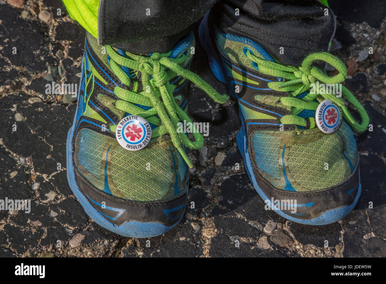 A six-year-old boy wears tags on his shoes warning that he has type 1 diabetes, also called juvenile diabetes. His - Stock Image