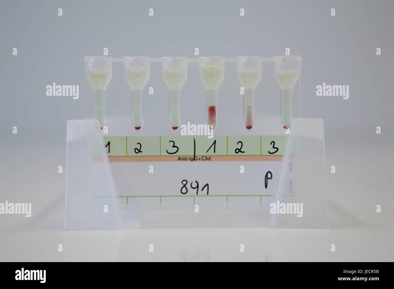 Laboratory, Immunhämatologische laboratory analytics, blood tests, indirect Coombs test, test series, medicine, - Stock Image