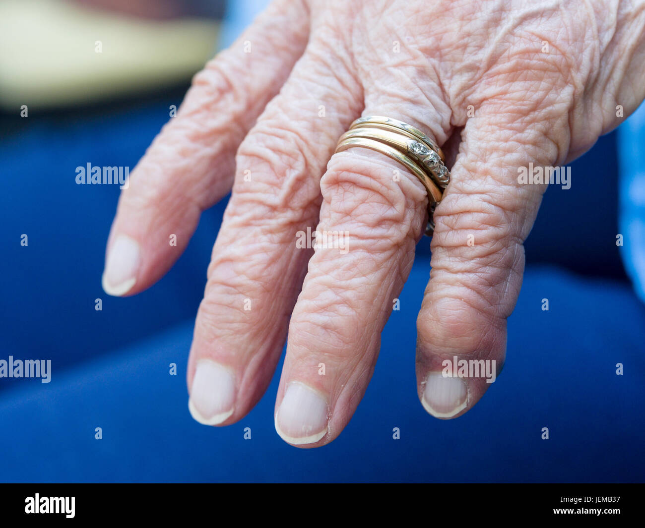 Arthritic wrinkled hand of an eldery woman: The left hand with wedding and engagement rings of an old woman. - Stock Image
