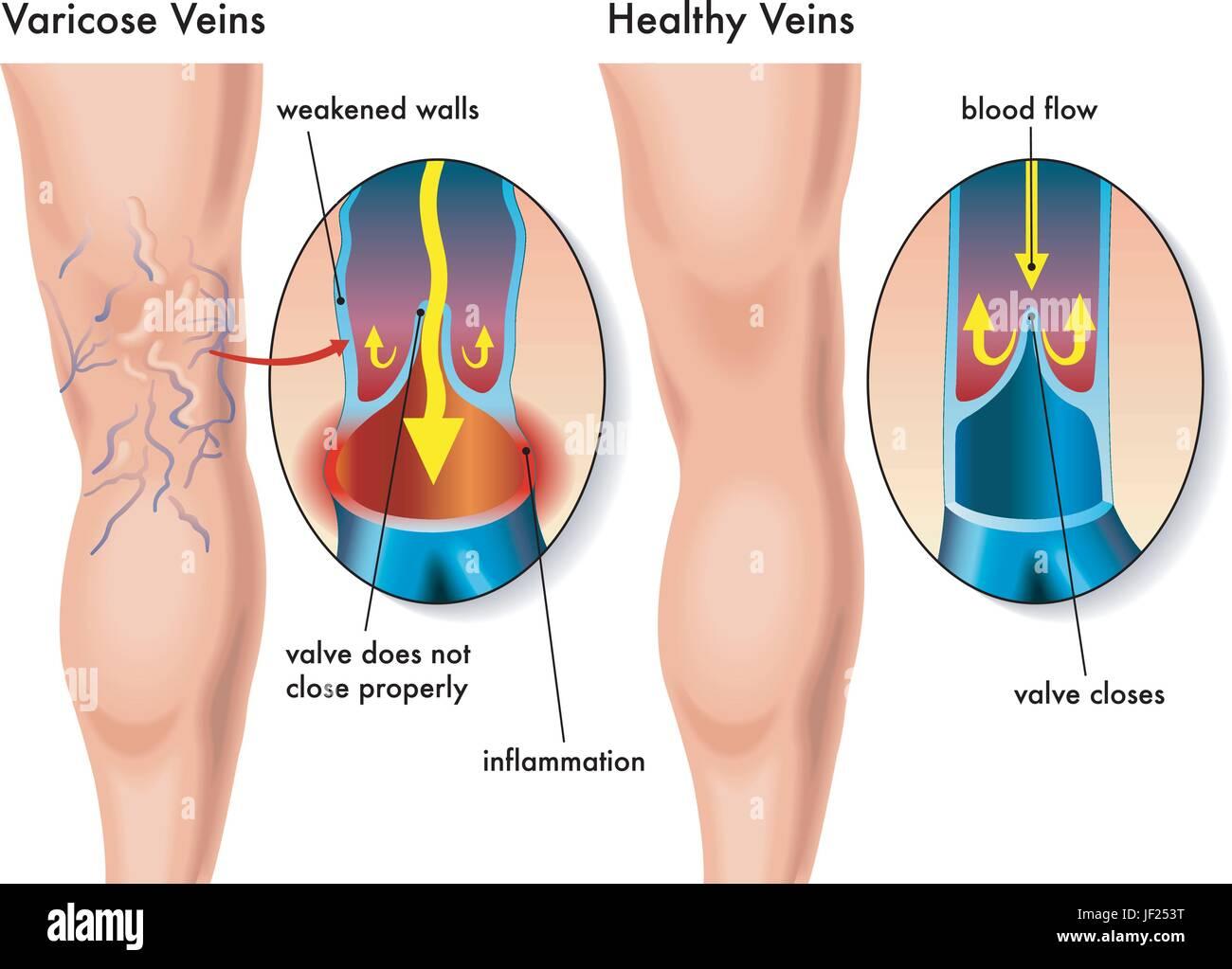 legs, veins, legs, heart, blood, veins, valves, disease, pressure ...