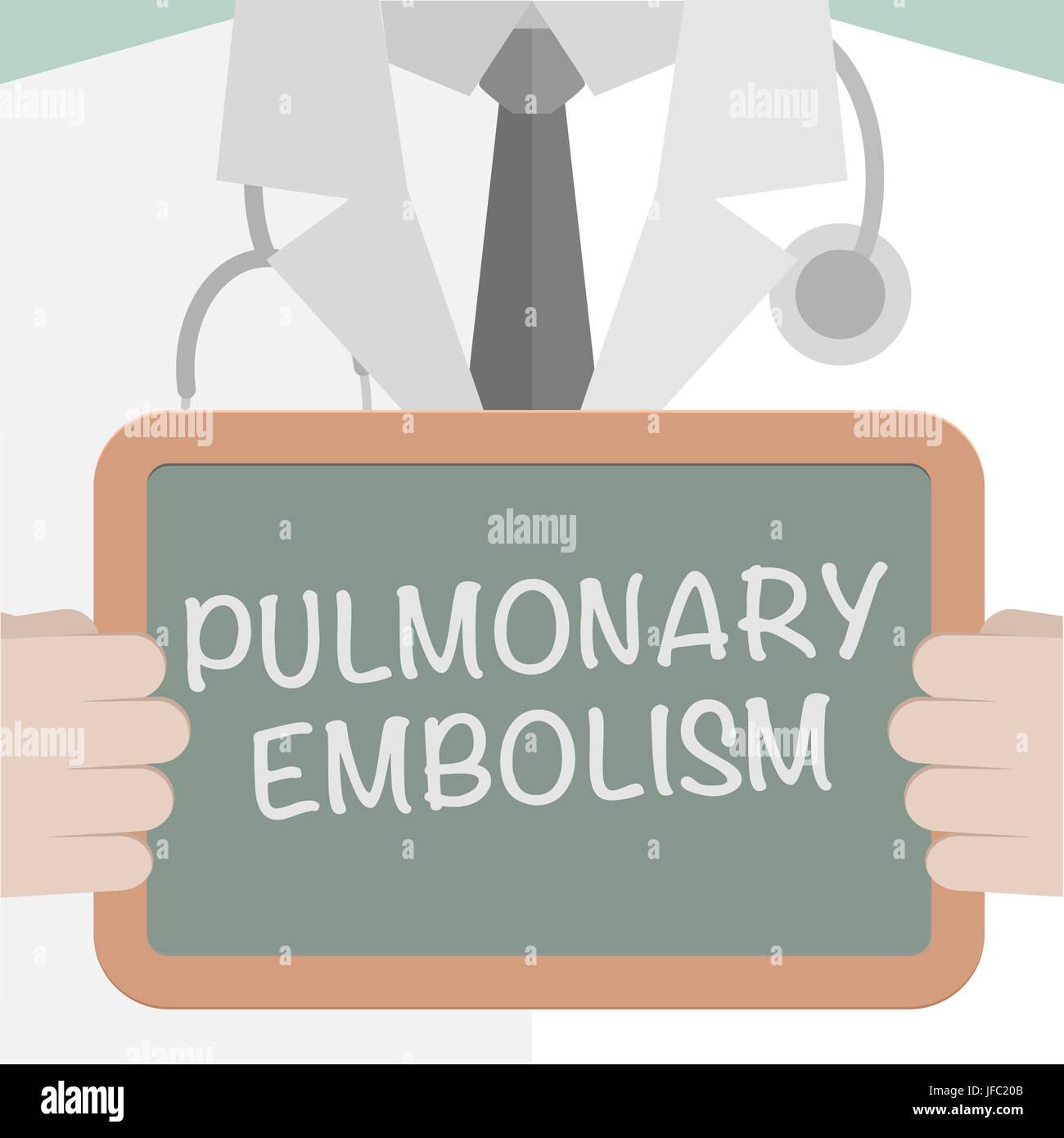Board Pulmonary Embolism - Stock Image