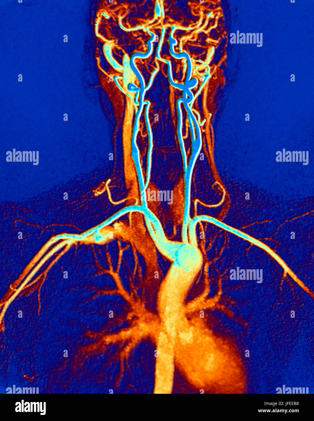 Chest, neck and head arteries. Coloured magnetic resonance angiography (MRA) scan of a normal carotid system of - Stock Image