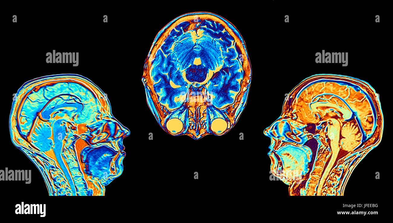 Computer enhanced false-colour Magnetic Resonance Images (MRI) of ...