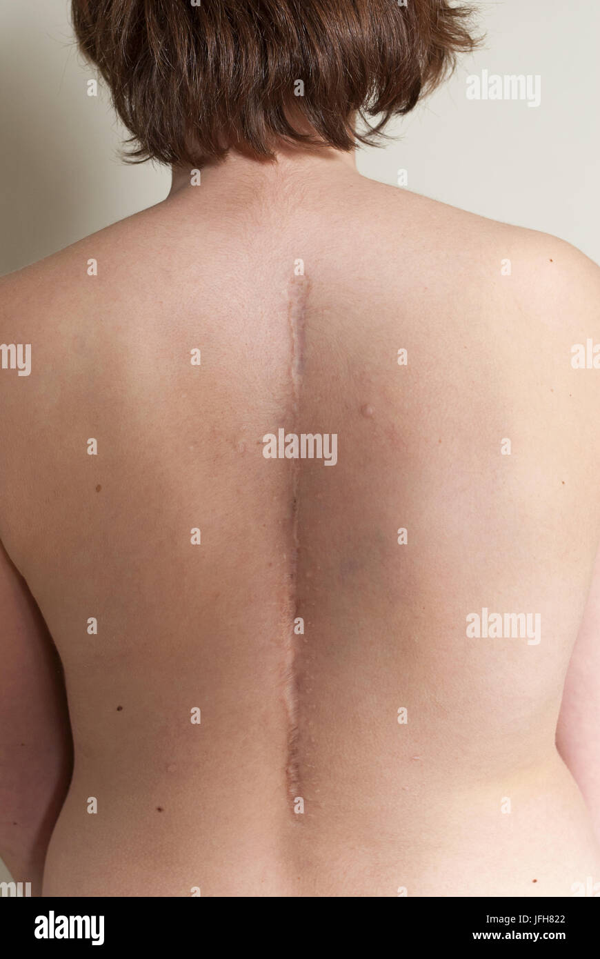 Back Woman with scar from scoliosis Op - Stock Image