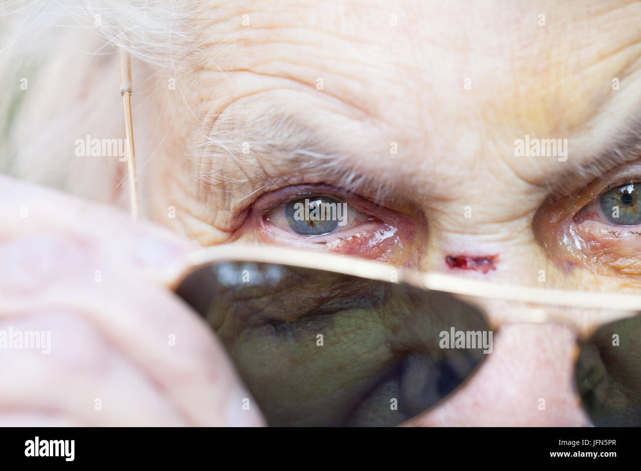 Close up picture of an injured elderly woman's eyes with sunglasses - Stock Image