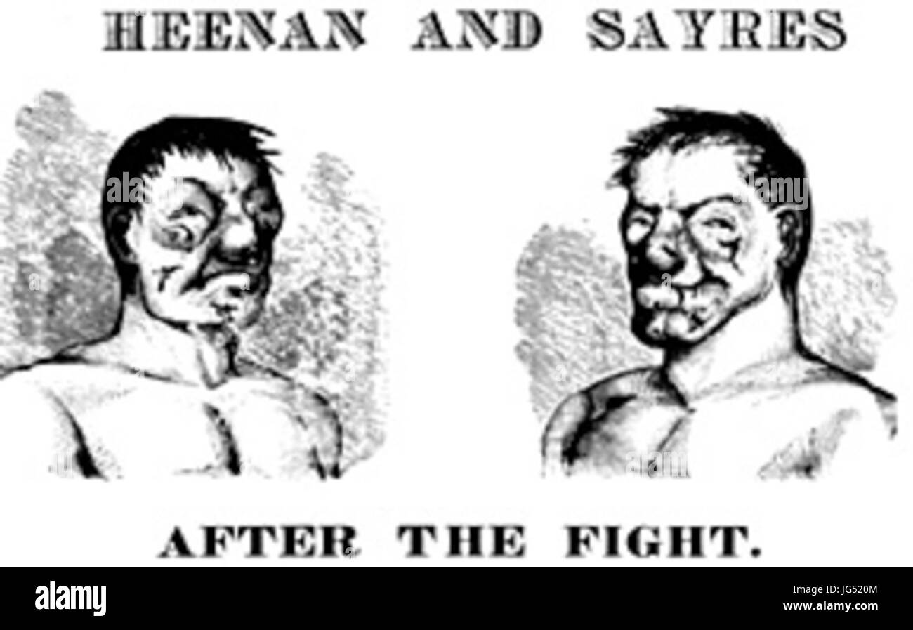 Print showing facial damage to John C. Heenan and Tom Sayers 28post-1860 boxing match29 - Stock Image
