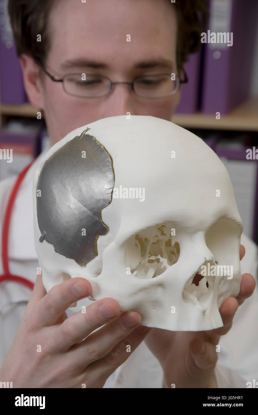 Metal plate for a specific cranial repair produced by  Direct Metal Laser Sintering (DMLS) process. - Stock Image