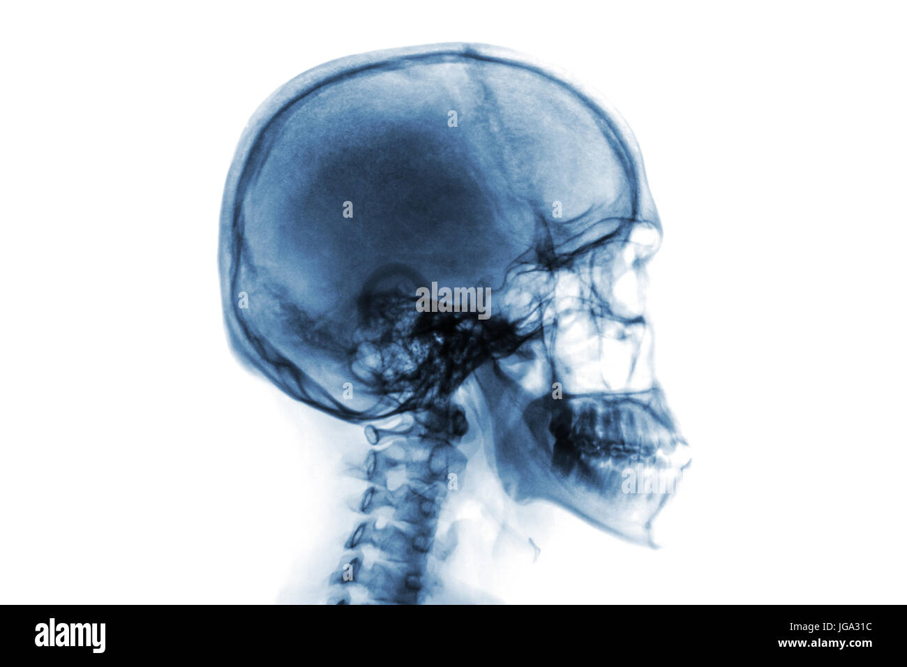 X-ray normal skull and cervical spine . Lateral view . Invert color ...