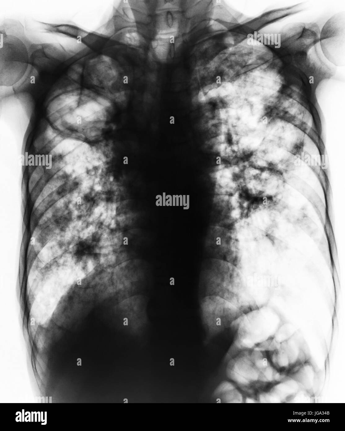 Pulmonary Tuberculosis . Film chest x-ray show fibrosis,cavity,interstitial infiltration both lung due to Mycobacterium - Stock Image