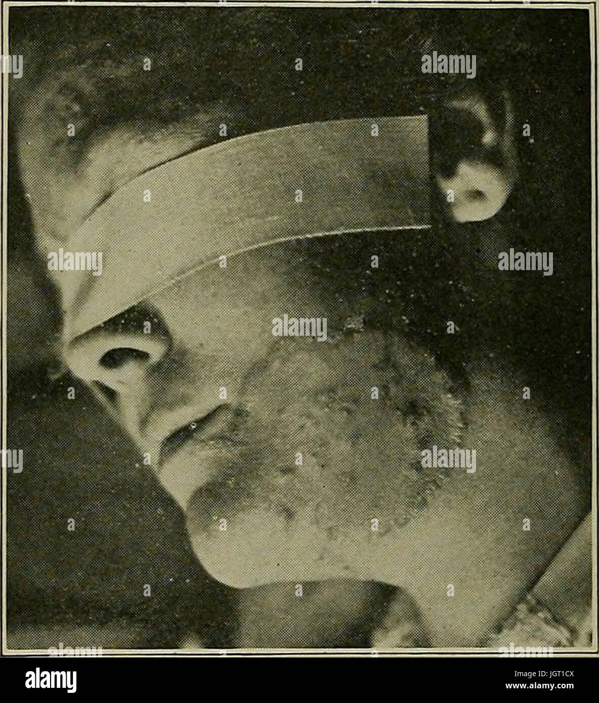 'Syphilis : a treatise on etiology, pathology, diagnosis, prognosis, prophylaxis, and treatment' (1921) - Stock Image